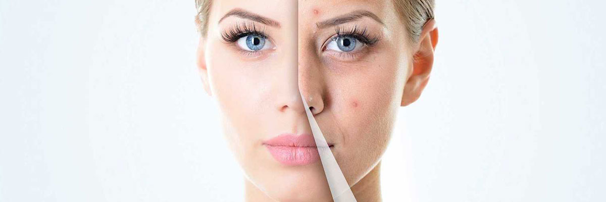 Get Clear Looking Skin with Acne Treatments Wembley