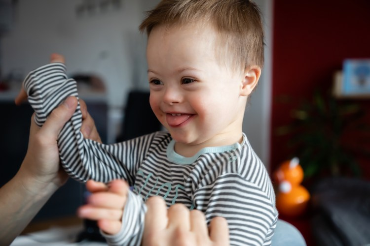 An image of a young child with down syndrome
