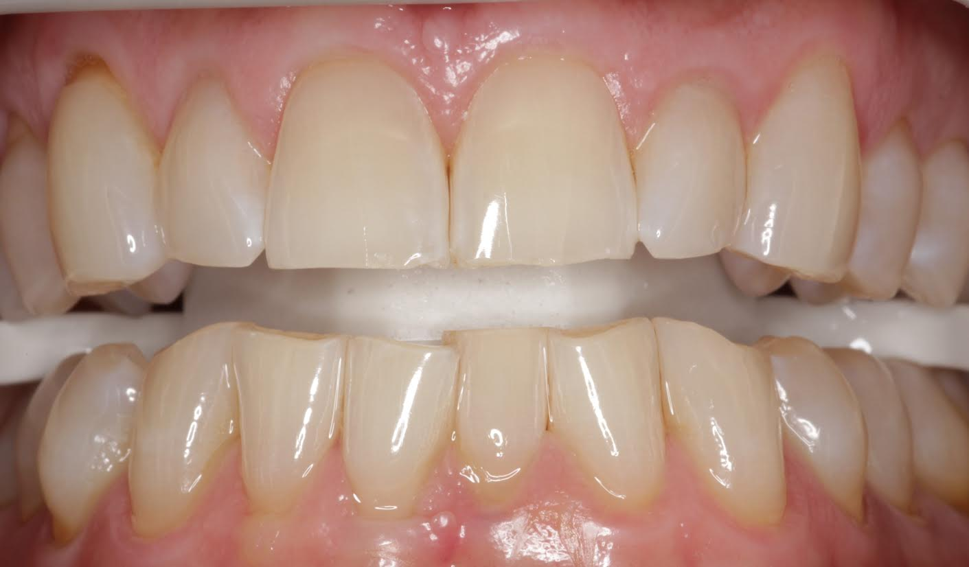 Professional Teeth Whitening - Teeth Whitening Dental Services | Charlotte Progressive Dentistry
