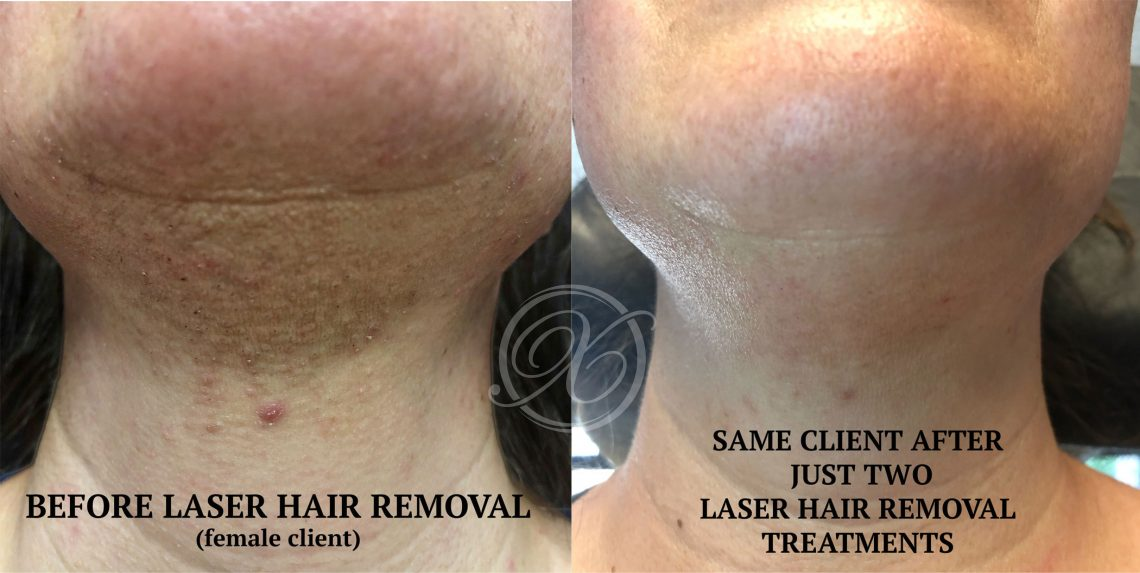 Laser Hair Removal Fort Collins - Schedule Permanent Hair ...