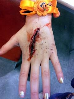 Háztartási baleset sebe