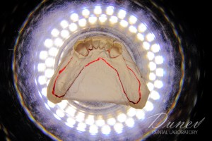 планиране фотодокументиране силиконова мека протеза