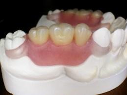 Силиконова зъбна протеза Vertex ThermoSens
