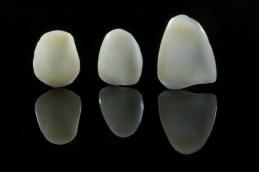 керамични фелдшпат фасети снимка зъботехник Марин Дунев Варна veneers feldspatic