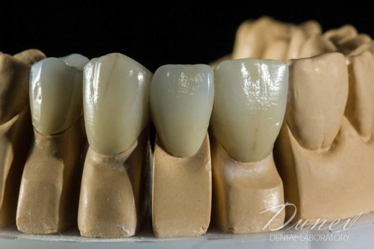 мнения препоръка за зъботехник във варна марин дунев коментари металокерамика вита вм13