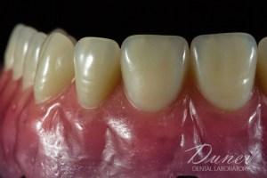 подвижно протезиране Wax-up проба с наредени зъби комбинирано