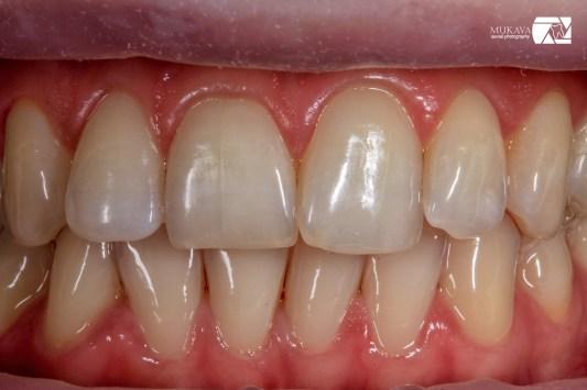 dentalna-fotografia-fotodokumentirane-klinichen-sluchai-marin-dunev-vana