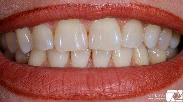 dentalna-fotografia-planirane-fotodokumentirane-marin-dunev-varna