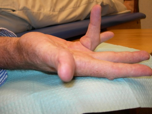 Dupuytren's contracture of 4th digit, ring finger, of man with history of hand trauma and genetic predisposition