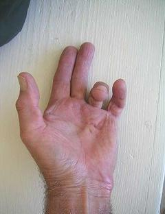 Dupuytren's contracture, left hand, cord development with moderate finger contracture of ring finger