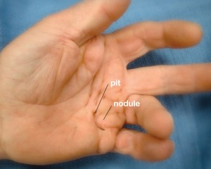 picture of Picture of Dupuytren contracture of left hand, showing well developed palm lump and pit formation with moderate ring finger flexion