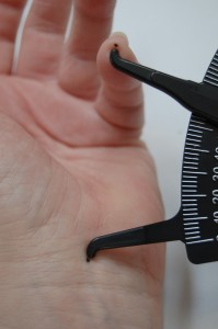 Keep exact records of how far finger contraction causes bent fingers to reduce hand use.