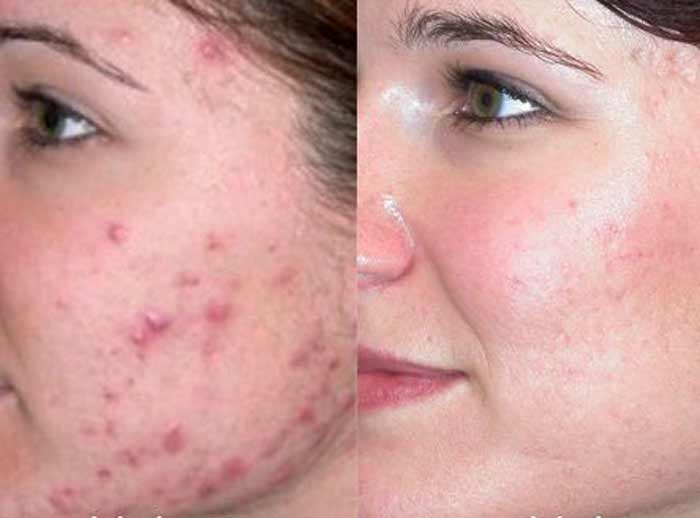 Castor Oil for Acne Scars Before and After Reviews Oily ...