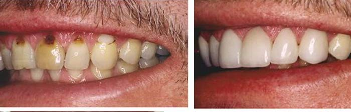 Deep Cleaning Teeth After Care does it Hurt Home ...
