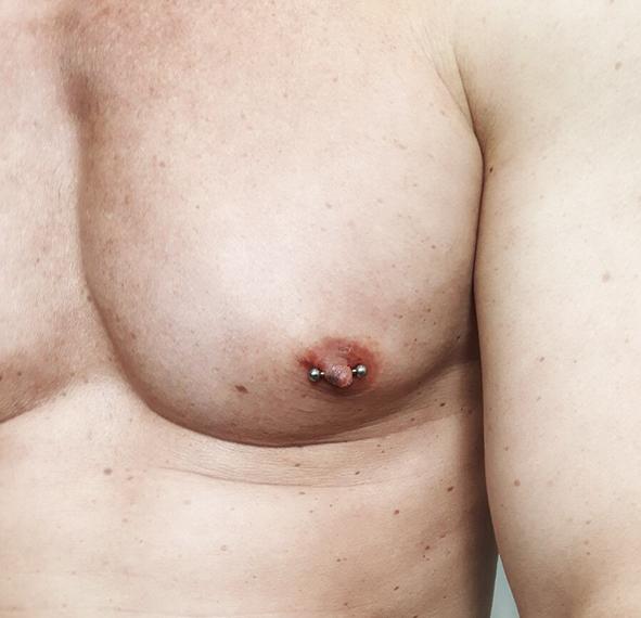 tepelpiercing-man-borst-piercing