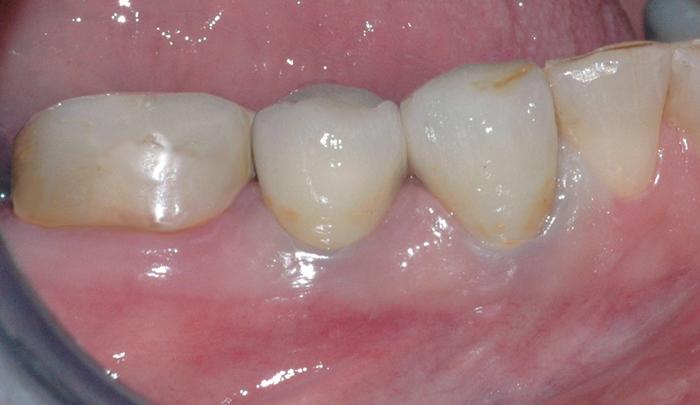 De nye kronene sementeres fast. Kronene er sterkere enn vanlige plastfyllinger, og passer godt i farge sammen med de andre tennene.