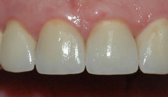 Bildet viser resultatet etter at tennene er reparert med keramiske kroner.