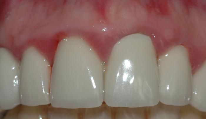 Bildet viser tannkjøtt i overkjeven med kraftigere og mer utbredt betennelse.