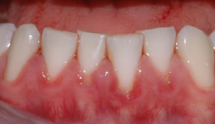 Bildet viser hvordan belegg har ført til rødt og hovent tannkjøtt ved flere tenner.