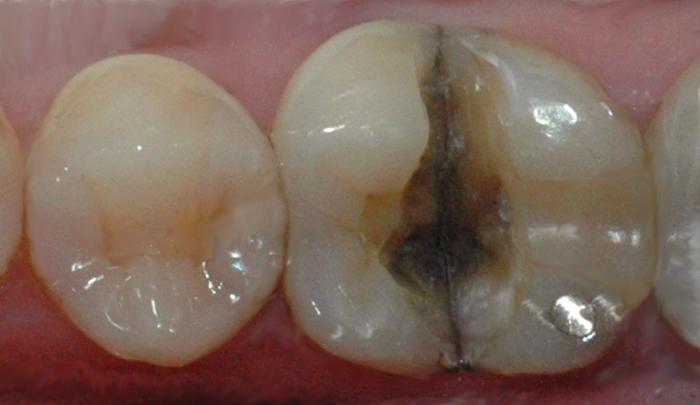 Bildet viser en tann der infraksjonslinjen over tid har ført til at tannen har delt seg i to.