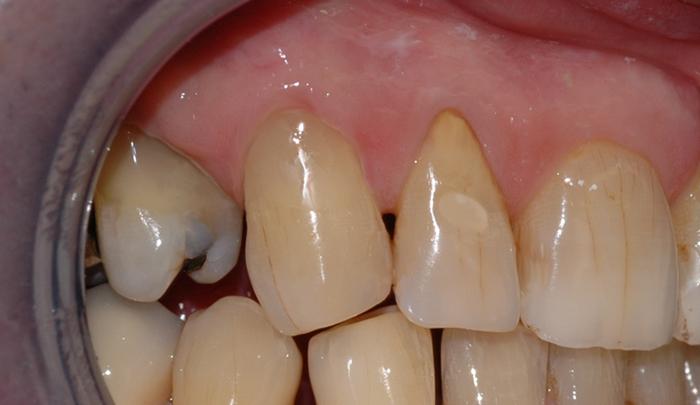 Tannen blir derfor reparert med en fylling.
