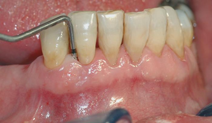 En undersøkelse med lommeregistrering avdekker likevel et omfattende bentap ved den ene tannen.