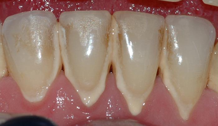 Bildet viser forholdene i underkjeven etter at tannstein og misfarging er fjernet