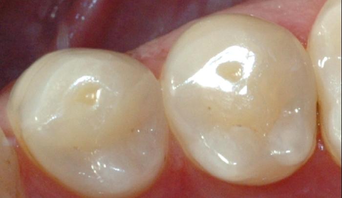 Bildet viser små groper i tennene, der emaljen er etset bort.