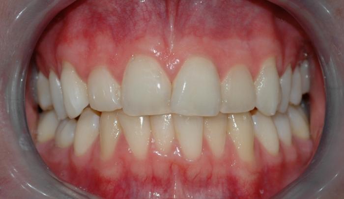 Bildet viser tenner før bleking. Tennene har ingen synlige fyllinger og kan derfor egne seg godt for bleking