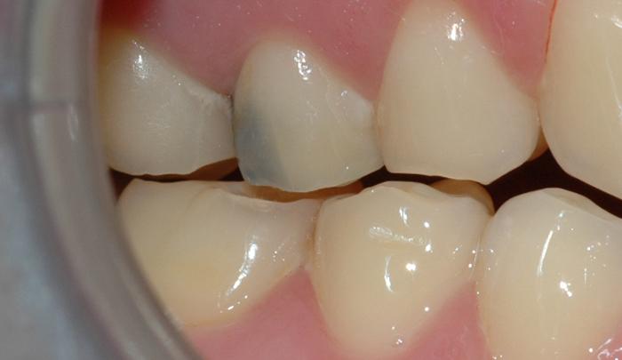 Bildet viser en tann med blålig misfarging, som følge av gjennomskinn fra en amalgamfylling.