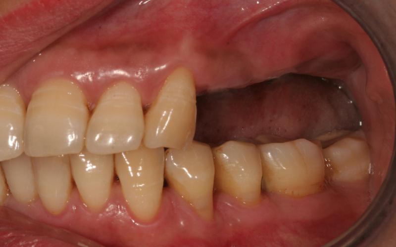 Bildet viser pasient med manglende tenner. Løsningen ble å lage en bro festet til implantater.