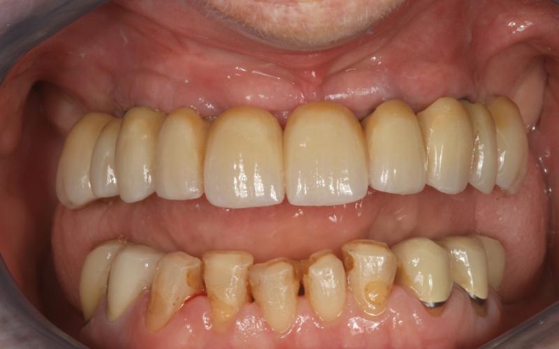Broen er nå skrudd fast til implantatene i munnen. Vi ser at det er gjort plass for at interdentalbørster kan komme til for renhold mellom broleddene.
