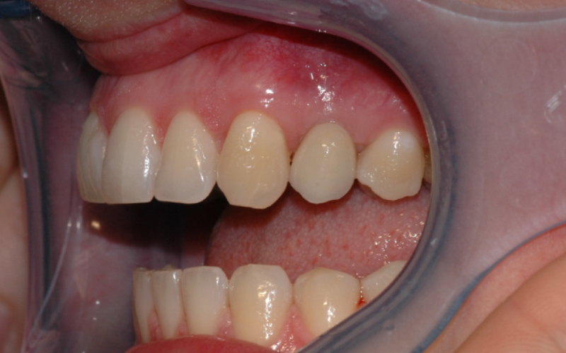 Bildet viser implantatkronen satt på plass. Det er viktig å holde godt rent rundt implantatet for å forebygge tannkjøttsbetennelse.