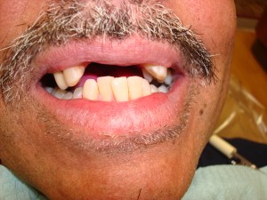 Before Denture Treatment in Dentist Plano TX Office