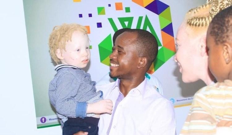 Wabouna sengage pour la cause des albinos - Gabon : un fonds d'aide mis sur pied en soutien aux personnes albinos