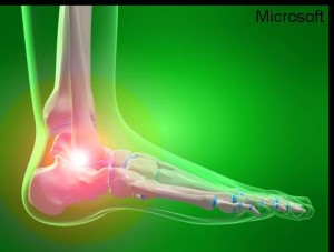 Ankle region - lateral - MS Clip art