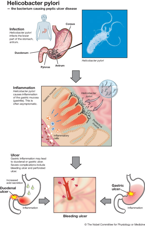 pathophysiology of peptic ulcer disease diagram light wiring house h. pylori infection. causes, symptoms, treatment infection