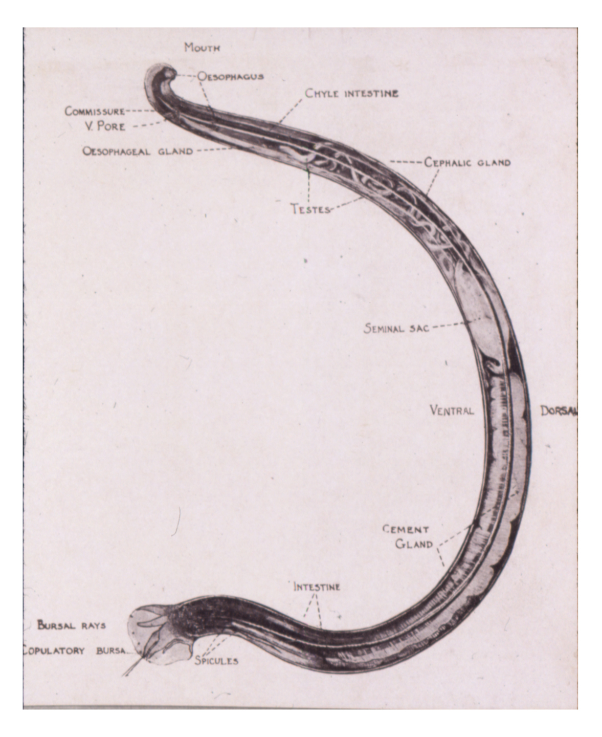 worm diagram labeled wiring spotlights 5 pole relay hookworm. causes, symptoms, treatment hookworm