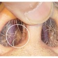 Nasal polyps causes symptoms treatment nasal polyps