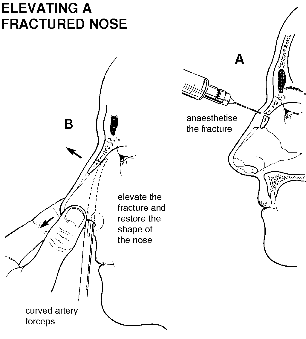 Nose Fracture Causes Symptoms Treatment Nose Fracture