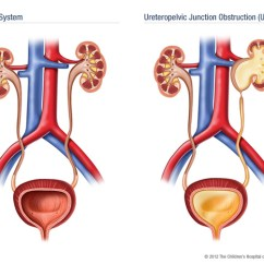 Diagram Of Kidney Ureter And Bladder Club Car Golf Cart Battery Wiring Upj Obstruction. Causes, Symptoms, Treatment Obstruction