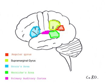 Anomic Aphasia Causes Symptoms Treatment Anomic Aphasia
