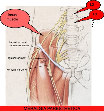 upper leg muscles diagram 2 way wiring meralgia paresthetica. causes, symptoms, treatment paresthetica