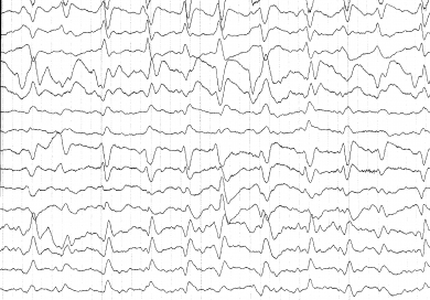 EEG. Causes, symptoms, treatment EEG