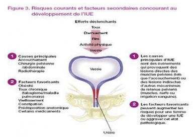 Incontinence - Urinary. Causes. symptoms. treatment Incontinence - Urinary