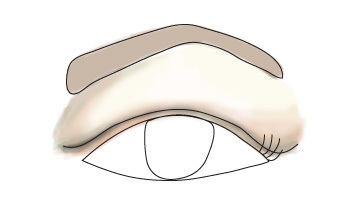 hooded eyelids