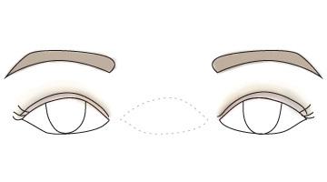 wide-set eyes