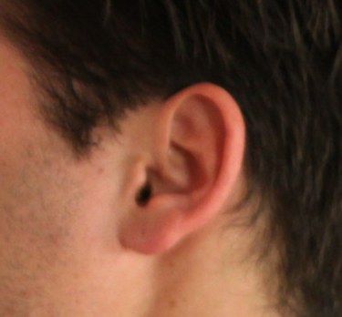 Ear Waxing Brazilian Waxing CenterSpa Services In