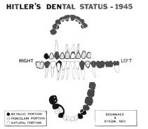 Dental-Chart