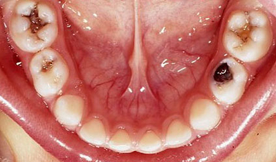 Image result for images of dental decay